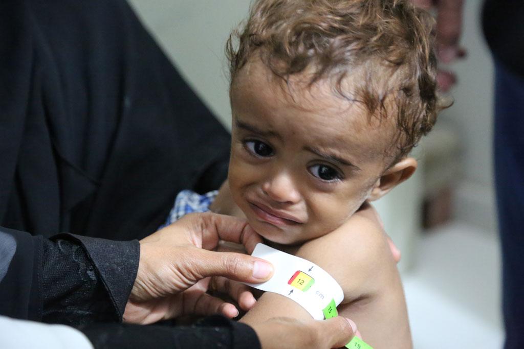 La moitié des enfants yéménites sont condamnés à un retard de croissance. D. R.