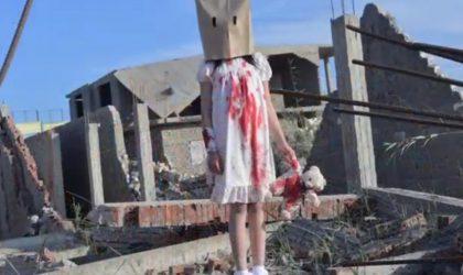 Faux clichés de blessés en Syrie : un photographe arrêté