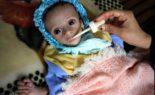Famine au Yémen : le peuple se nourrit de feuilles d'arbres