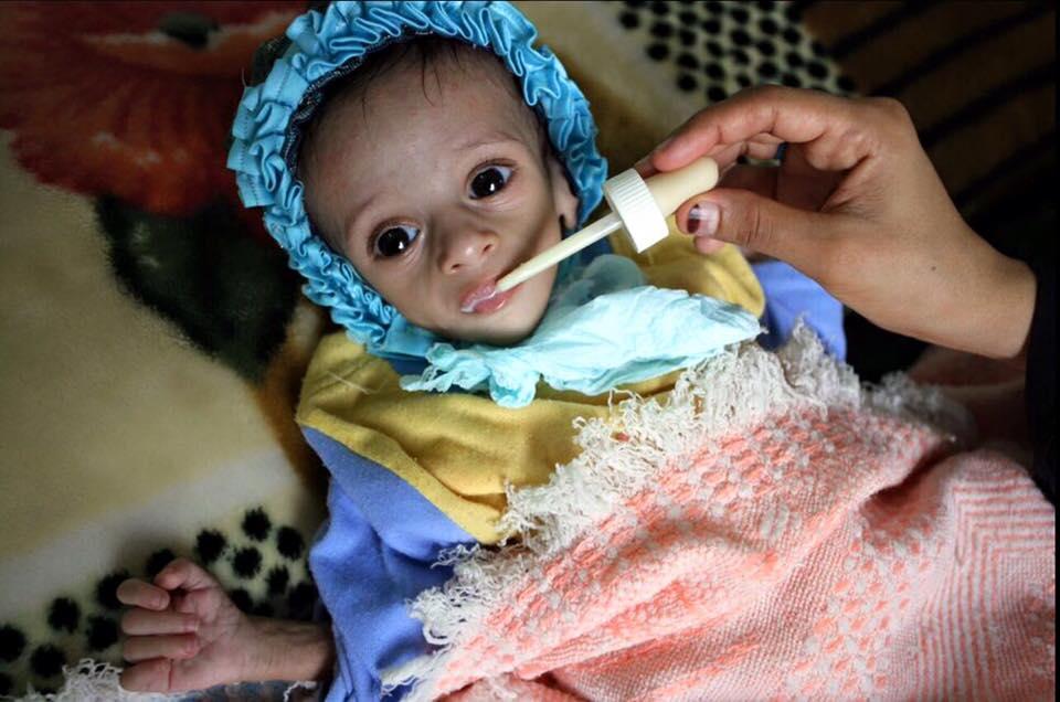 Yémen Arabie Saoudite choléra