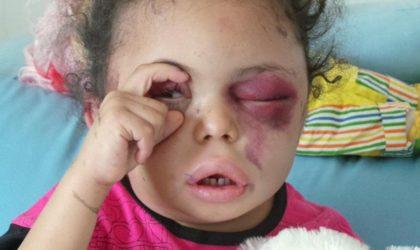 Yémen : une bombe de fabrication américaine tue et mutile des enfants