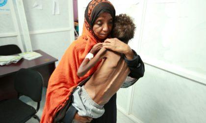 Le choléra tue 2127 personnes au Yémen