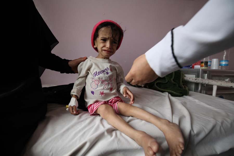 Yémen Unicef