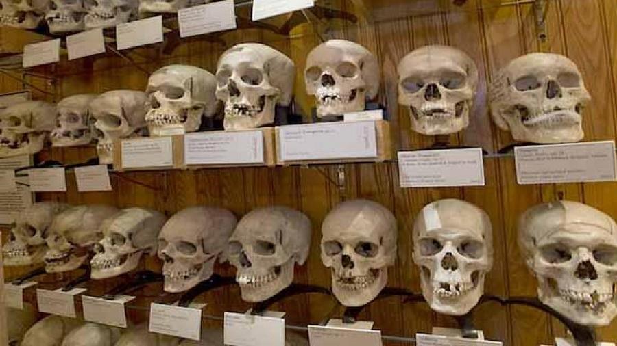 crânes résistants algériens MNHN