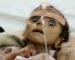 Images choquantes : les enfants yéménites souffrent de malnutrition aiguë