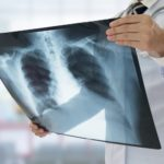 vaccin tuberculose