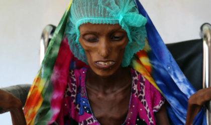 Yémen : risque imminent de famine des populations civiles