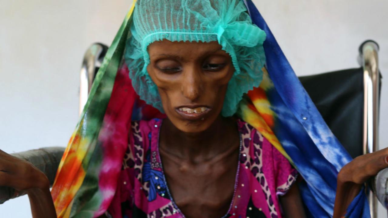 Yémen famine